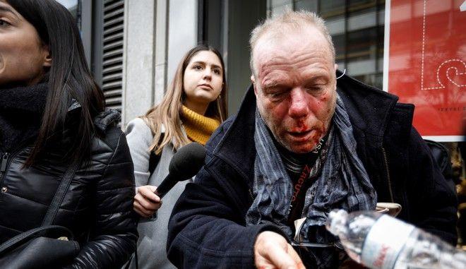 Ο Θωμάς Ιακόμπι μετά την επίθεση που δέχτηκε από ακροδεξιούς στο Σύνταγμα
