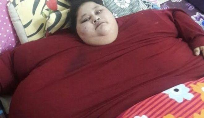 Εγχειρίσθηκε η βαρύτερη γυναίκα στον κόσμο που ζύγιζε 500 κιλά